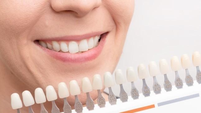 Tahad valgemaid hambaid? Proovi neid pastasid!