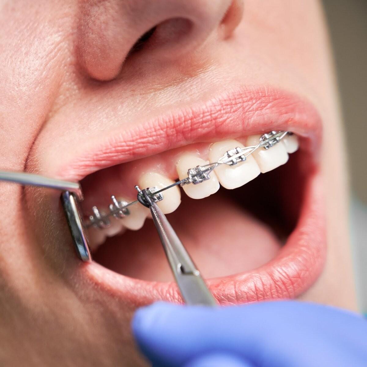 Erialaselts: ortodondiks ei saa niisama hakata