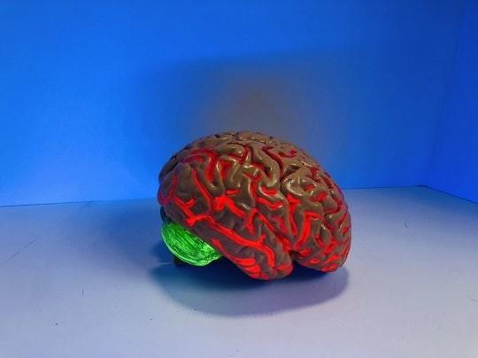 Uuring: kolmandikul koroonapatsientidest on ajus suured muutused.